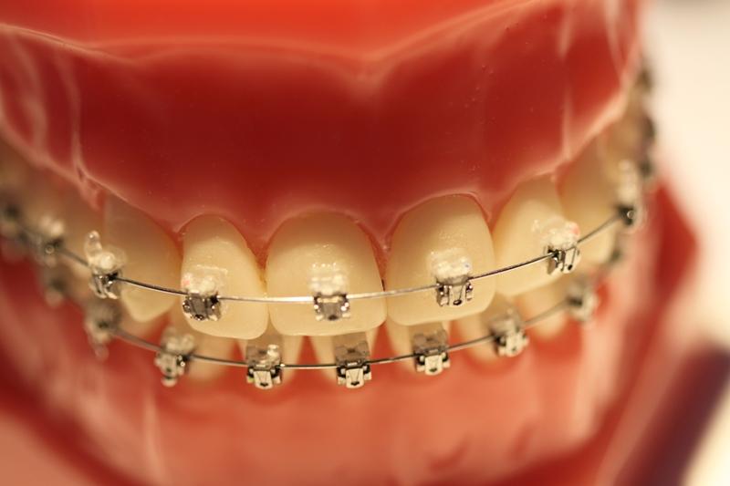 Krzywy zgryz może powodować - aparat na zęby