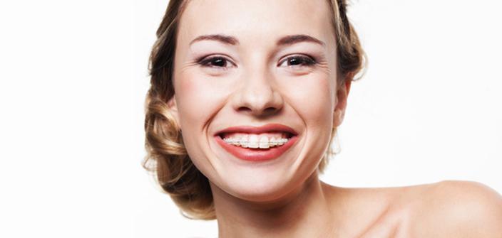 Kobieta z aparatem ortodontycznym
