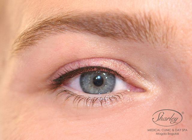Makijaż Permanentny Oczu Wirtualna Klinika