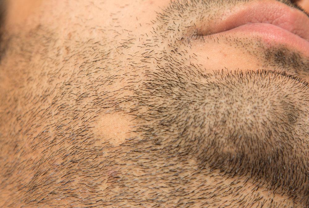 łysienie plackowate