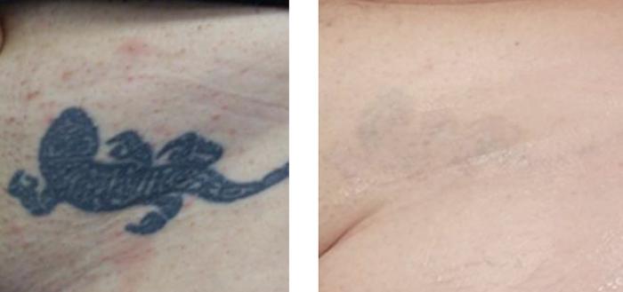 Laserowe Usuwanie Tatuaży Wirtualna Klinika