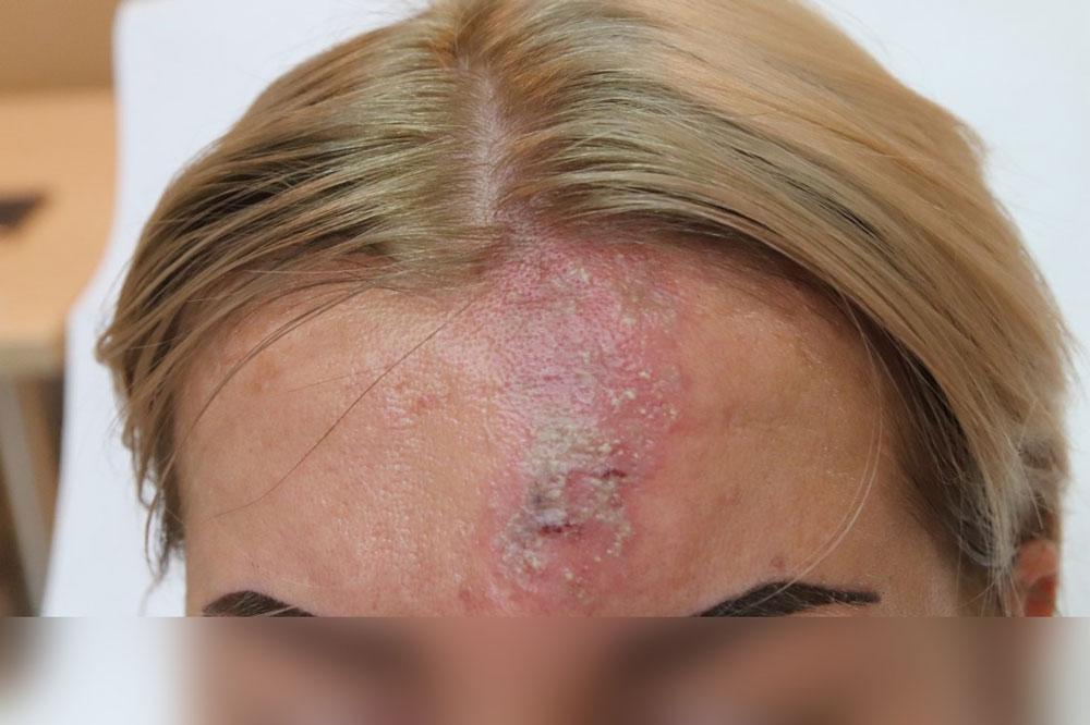 powikłania po zabiegu, martwica skóry