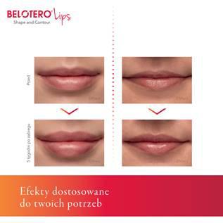 Belotero Lips