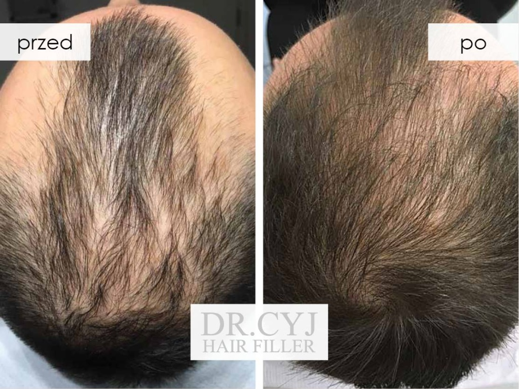 efekty Dr Cyj Hair Filler